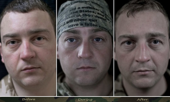 Photographs Of Soldier's Face Before And After A War